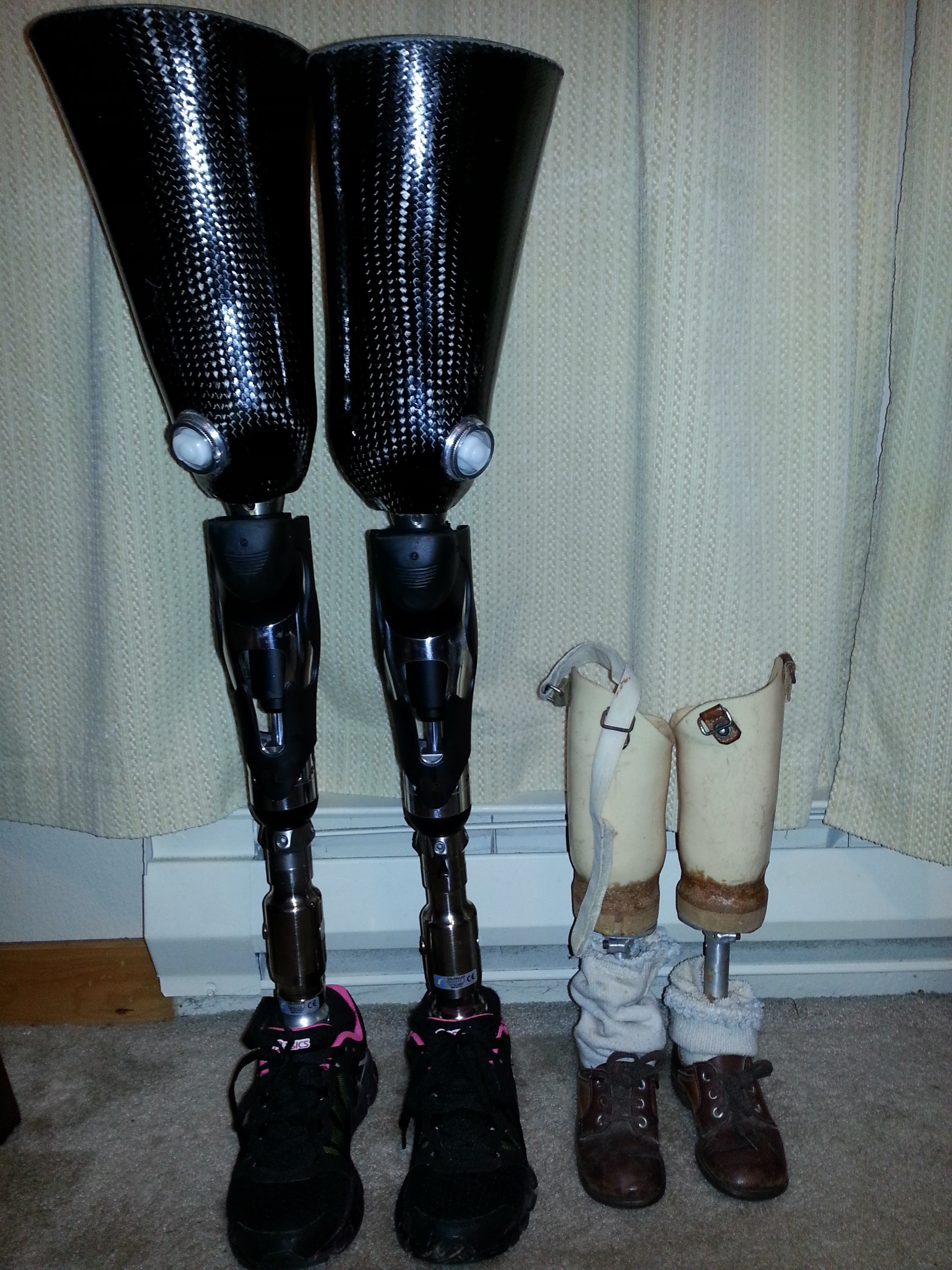 Image result for a black lady with uneven legs amputated